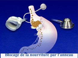 chirurgie pas cher, lifting mammaire tunisie, clinique tunisie, esthétique tunisie, rhinoplastie tunisie, augmentation mammaire tunisie, lipofilling tunisie, lifting tunisie, abdominoplastie tunisie, chirurgie homme tunisie, liposuccion tunisie, opération tunisie