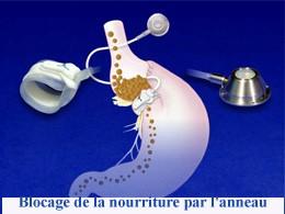 abdominoplastie tunisie, lifting tunisie, Chirurgie tunisie, liposuccion tunisie, chirurgie esthétique tunisie, chirurgie mammaire tunisie, opération tunisie, augmentation mammaire tunisie, lipofilling tunisie, esthétique tunisie, chirurgie pas cher, chirurgie homme tunisie