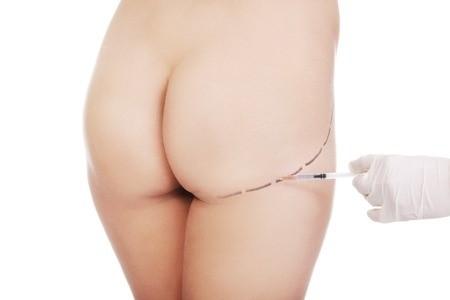 esthétique tunisie, chirurgie mammaire tunisie, lipofilling tunisie, augmentation mammaire tunisie, clinique tunisie, chirurgie pas cher, lifting mammaire tunisie, abdominoplastie tunisie, liposuccion tunisie, lifting tunisie, chirurgie homme tunisie, Chirurgie tunisie