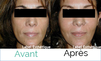 chirurgie pas cher, opération tunisie, clinique tunisie, chirurgie homme tunisie, Chirurgie tunisie, rhinoplastie tunisie, chirurgie esthétique tunisie, lifting tunisie, esthétique tunisie, chirurgie mammaire tunisie, liposuccion tunisie, lipofilling tunisie