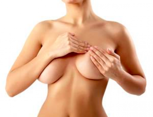 Lifting mammaire avec prothèses