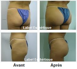 lipofilling tunisie, lifting mammaire tunisie, opération tunisie, clinique tunisie, chirurgie homme tunisie, lifting tunisie, liposuccion tunisie, esthétique tunisie, chirurgie pas cher, chirurgie esthétique tunisie, chirurgie mammaire tunisie, rhinoplastie tunisie